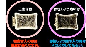 正常な骨・骨粗しょう症の骨